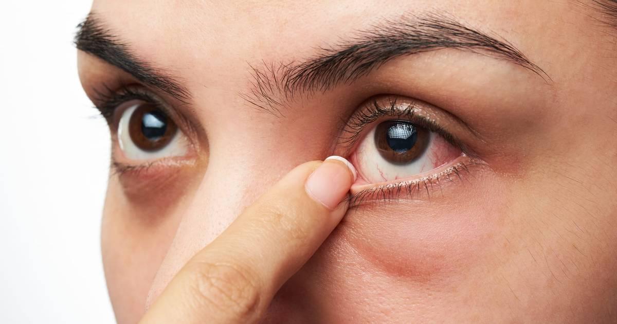 tørre slimhinder i næse og svælg