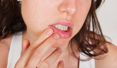 herpes finger behandling