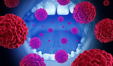 Symptomer kræft i halsen Symptomer