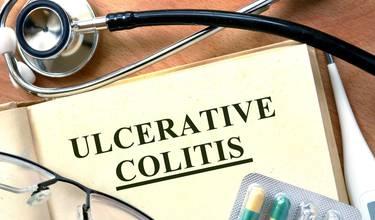 hvad er colitis