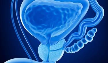 forstørret prostata smerter